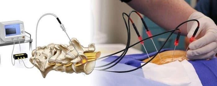آر اف رادیو فرکوئنسی (RF) برای کاهش درد کمر، گردن و آسیب عصب