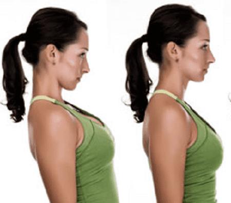 درمان آرتروز گردن با اسلاید بک