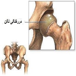 انواع جابجایی استخوان لگن