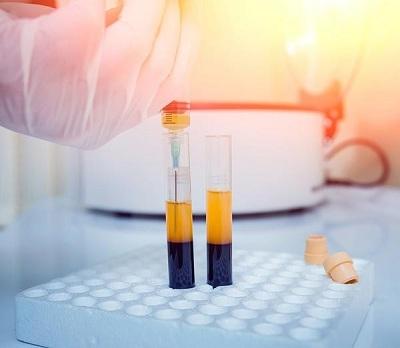 تزریق پلاسمای غنی از پلاکت