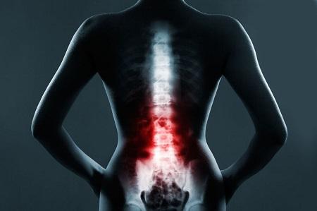 درباره درد پایین کمر بیشتر بدانید