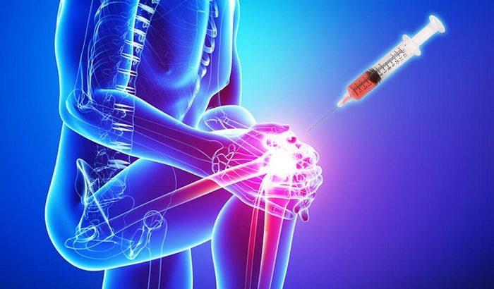 درمان با پلاسمای غنیشده با پلاکت (پی آر پی)