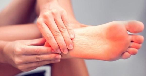 درمان خار پاشنه (برآمدگی استخوان زیر پاشنه پا) با یا بدون جراحی