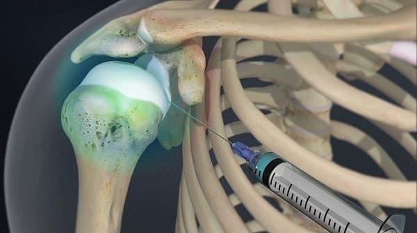 درمان درد شانه با تزریق داخل مفصل