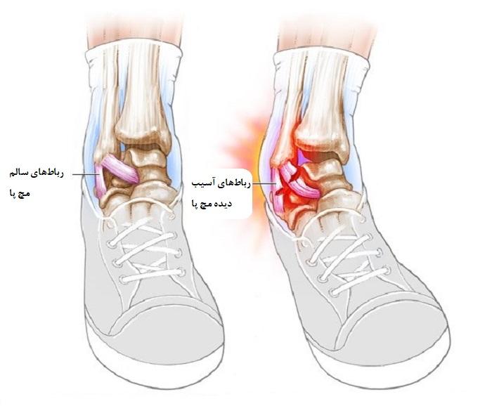 درمان رگ به رگ شدن و پیچ خوردن (کشیدگی تاندون) مچ پا بدون جراحی