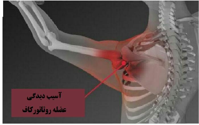 درمان پارگی روتاتور کاف شانه برای بهبود حرکت و جلوگیری از خشکی شانه