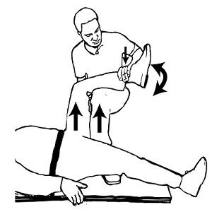 راههای درمان دررفتگی لگن یا هیپ