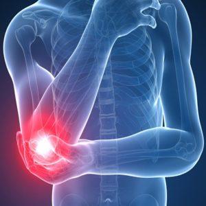 درمان سوزش و درد آرنج