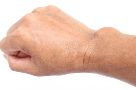 علائم کیست مچ دست