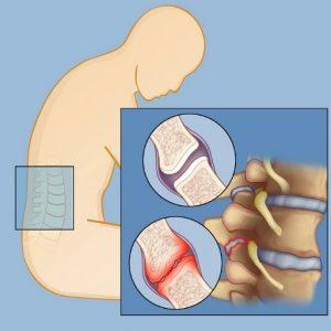 علت و علائم درد مفاصل فاست کمری