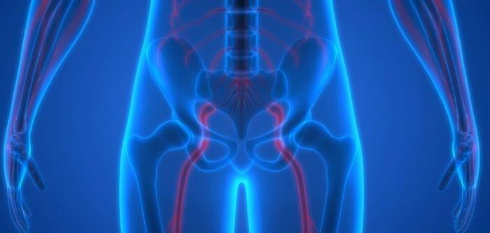 علل درد رگ و عصب سیاتیک چیست؟