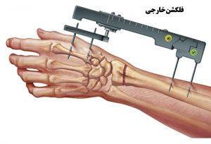 عملها و فرایندهای جراحی