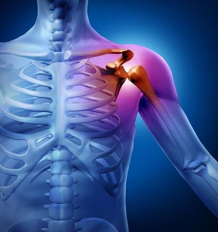 چگونه میتوان از پارگی عضله روتاتور کاف جلوگیری کرد؟