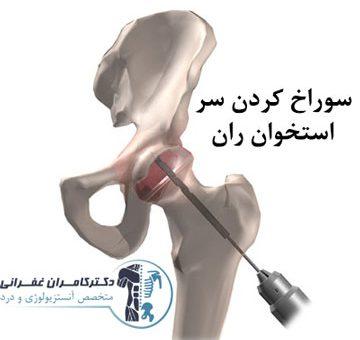 جراحی دکمپرشن سر استخوان ران