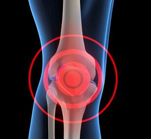 درد بعد از عمل تعویض مفصل زانو
