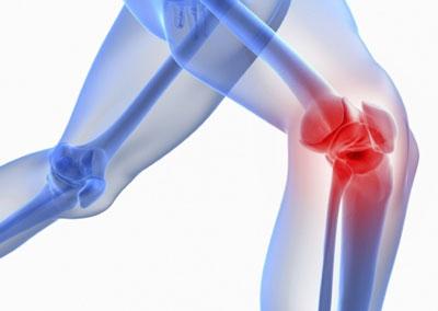 مدیریت درد قبل از شروع درد عمل تعویض مفصل زانو